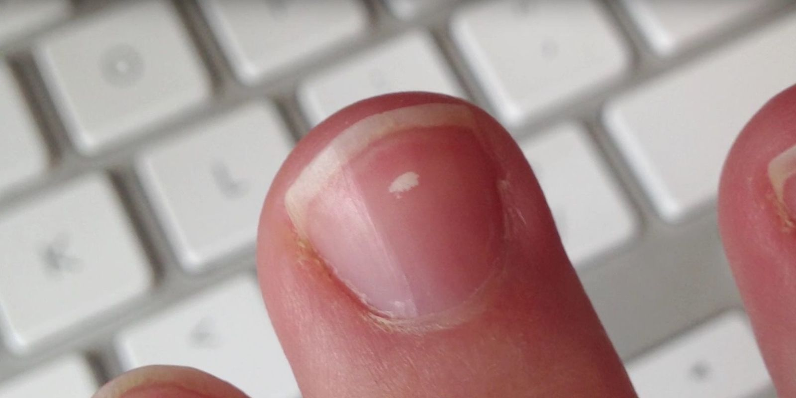 White spots on the nails, the fact that it is from a lack of vitamins is one thing. and there are any signs of this 77