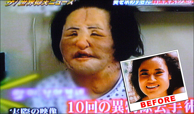 Korean Woman S Face Deformed After Diy Cooking Oil Injections
