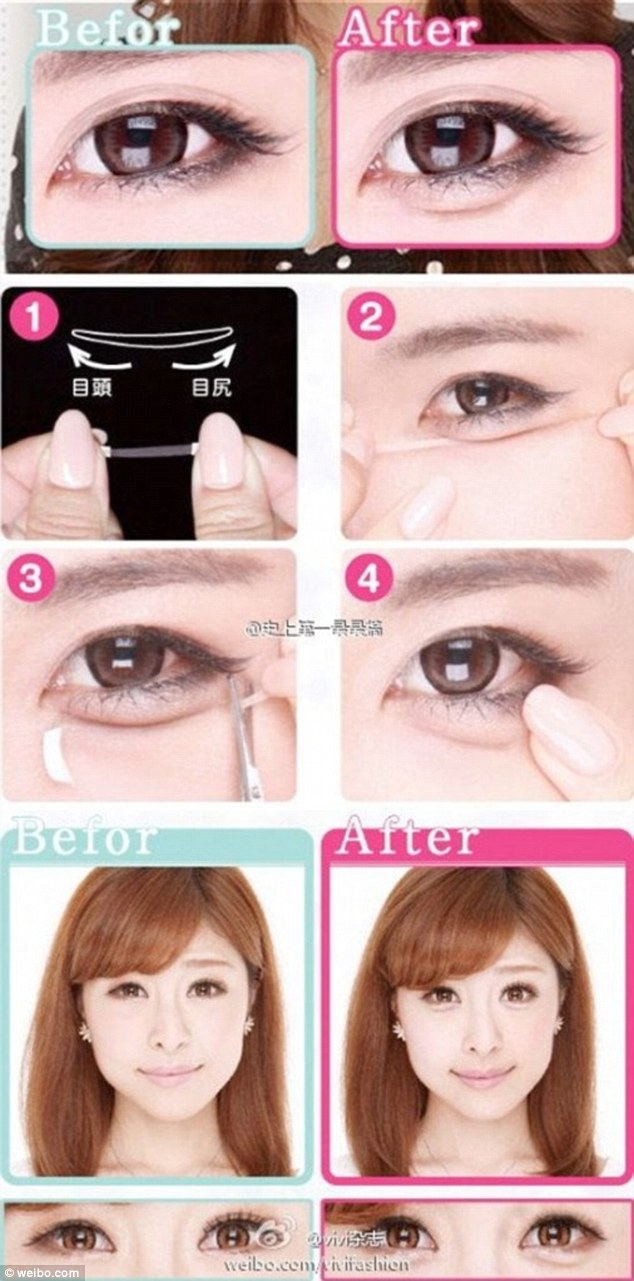 You Hate Eye Bags? Koreans Don't, And They're Getting Plastic