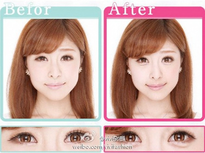 Before and after look of Aegyo Sal.