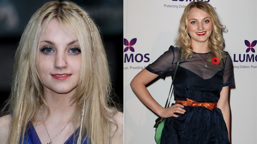 Luna Lovegood Then And Now 12 Before And After Ph...