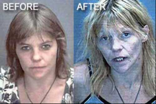 Long-term meth users, photo from Wordpress.
