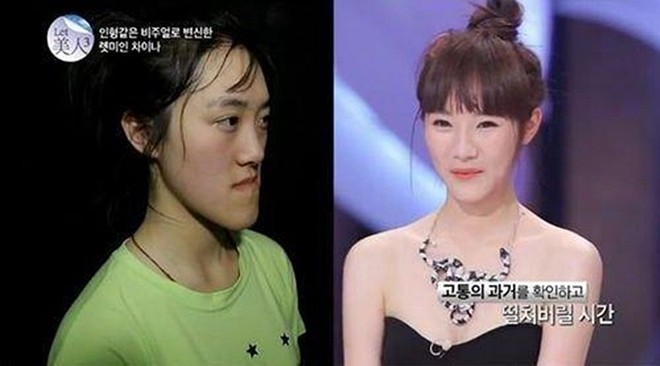 Before And After Korean Twins Get Drastic Plastic Surgery On Tv Show