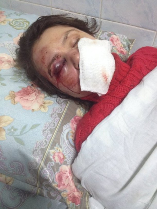 Journalist and activist Tetyana Chornovol lies in a hospital bed after unknown men beat her on her way home on Dec. 25.