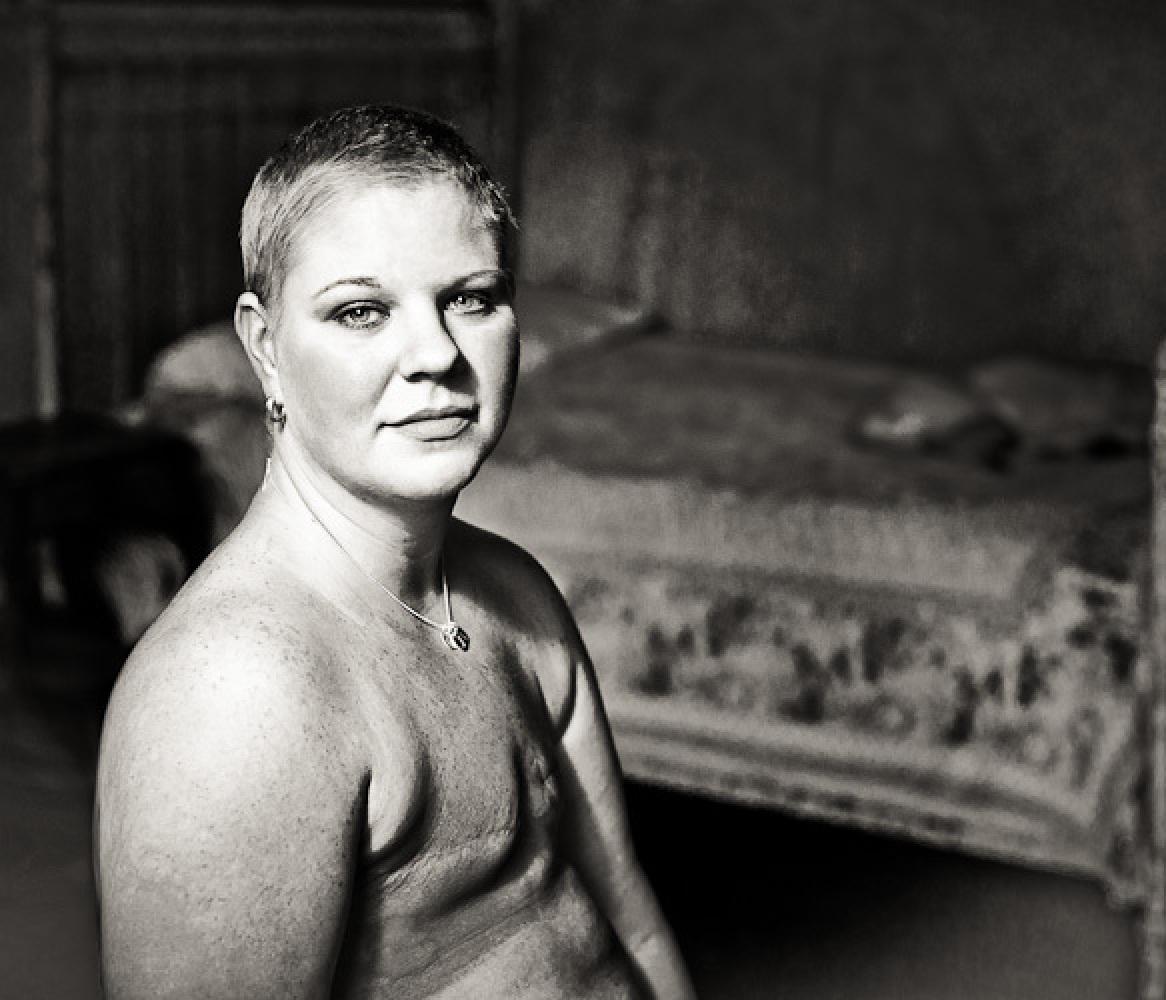 Смотреть фотоженщин сампутированой грудью 22 фотография
