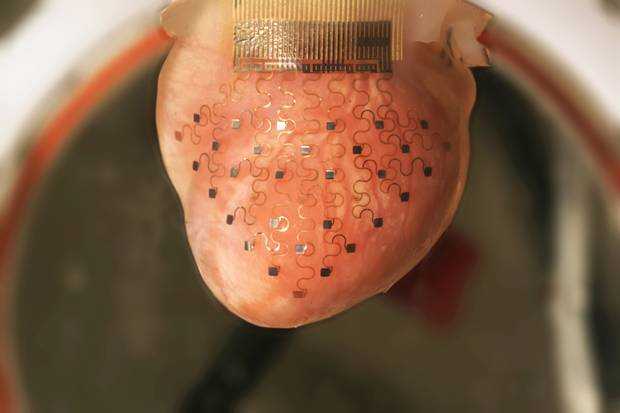 This photo shows the new cardiac device ― a thin, elastic membrane ― fitted over a rabbit's heart.