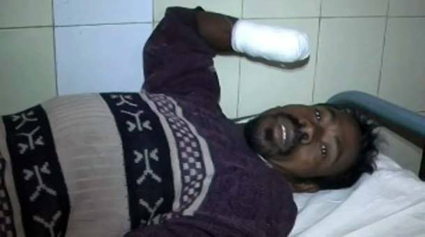 Nilambar Dhangda Majhi, the migrant labourer - whose hands were chopped by a labour contractor - lying on his bed in Bhawanipatna district headquarters hospital.
