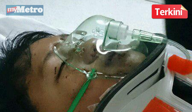 Mangsa Dylause Dionel, parah dikepala dipercayai terjatuh dari koridor bangunan tingkat tiga SK Ansip.