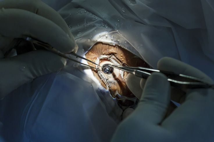 The doctor performs the cataract surgery