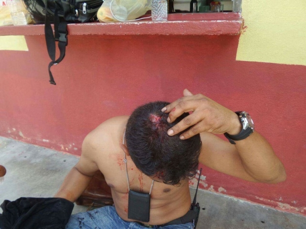 KL Express photographer Mahathir Mohammad was injured during a scuffle in Permatang Pauh.