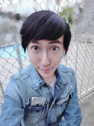 Lelaki 18 Tahun Di China Ini Buat Pembedahan Plastik