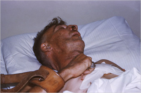 Hospitalized human rabies victim who was restrained while bedridden.