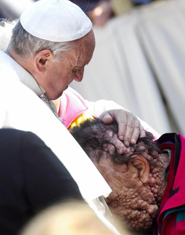 Pope Francis hugging a man with neurofibromatosis in Saint Peter's Square, Vatican City three years ago