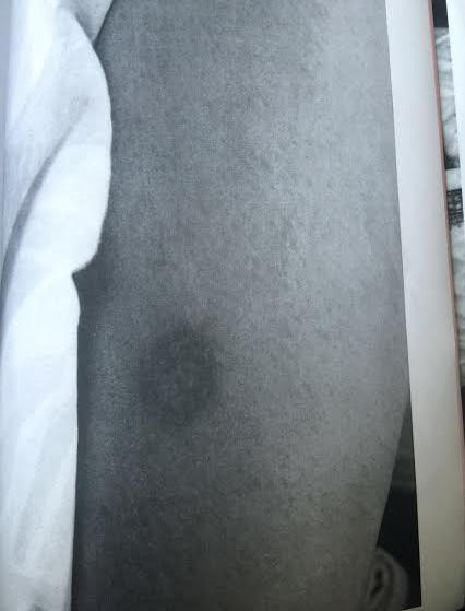 Not only was Taher physically abusing Shona, but he was also hurting their 7-year-old son. This is an image of Emran's leg, burnt with a cigarette butt.