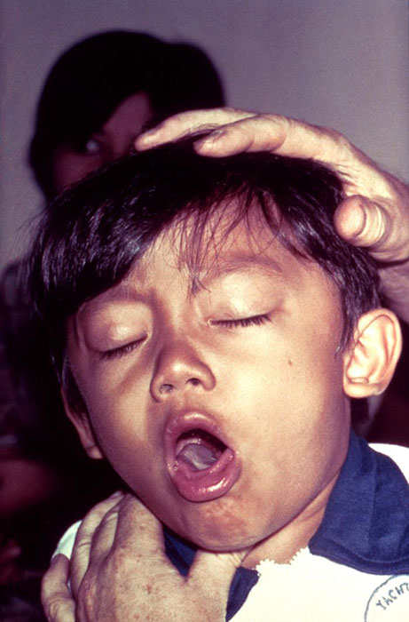 Difficulty of breathing in a young boy with diphtheria