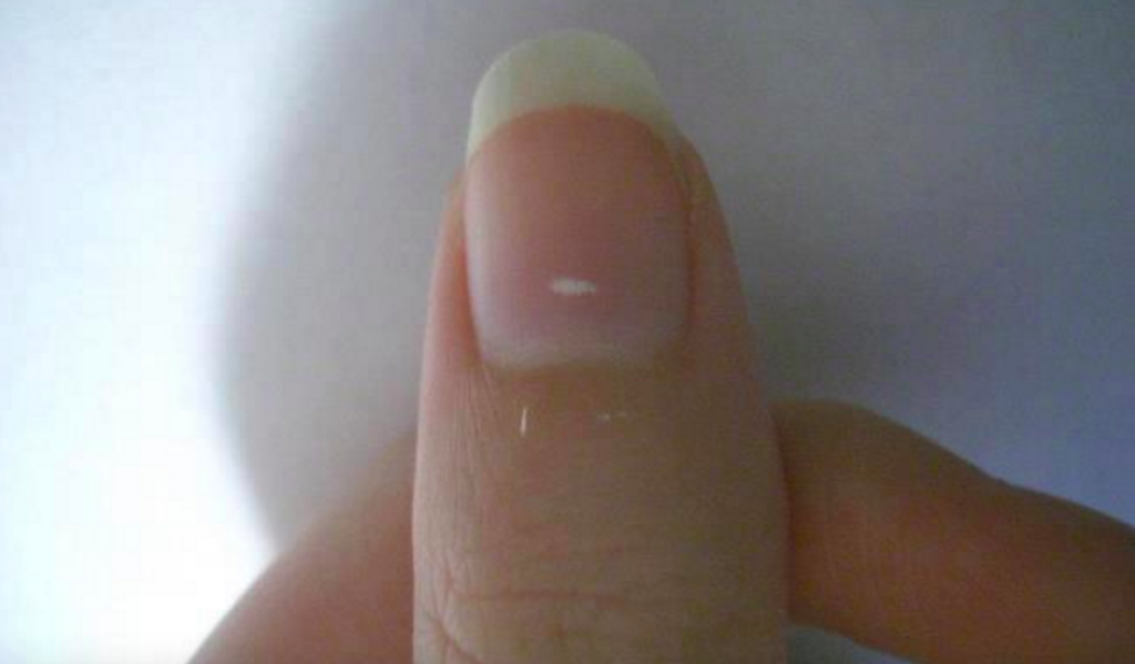 The White Marks On Your Nails Are Not What You Think They Are