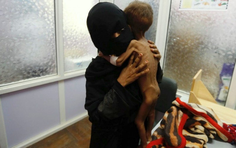 A woman brings her child to a hospital in Yemen to be treated for severe malnutrition.