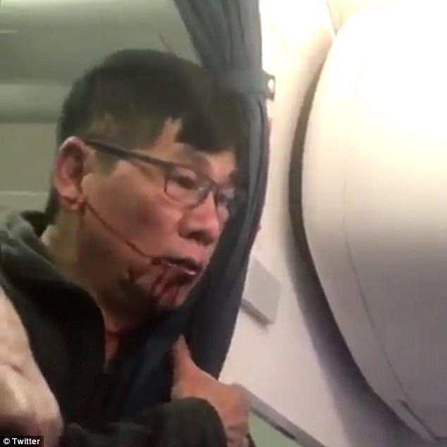 Dr Dao pictured bleeding from the mouth during the incident which occurred a few days ago on a Kentucky-bound flight.