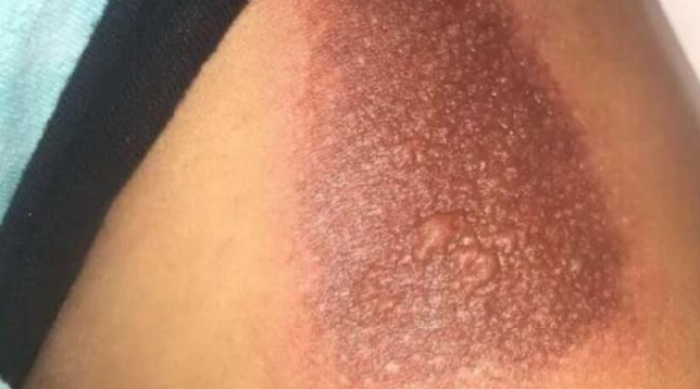 A woman shows the burn she received from her phone case.