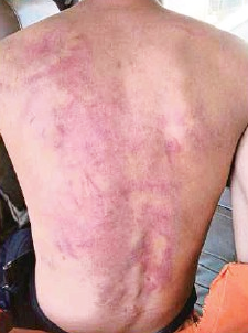 Wan Faris was heavily bruised from the beatings.