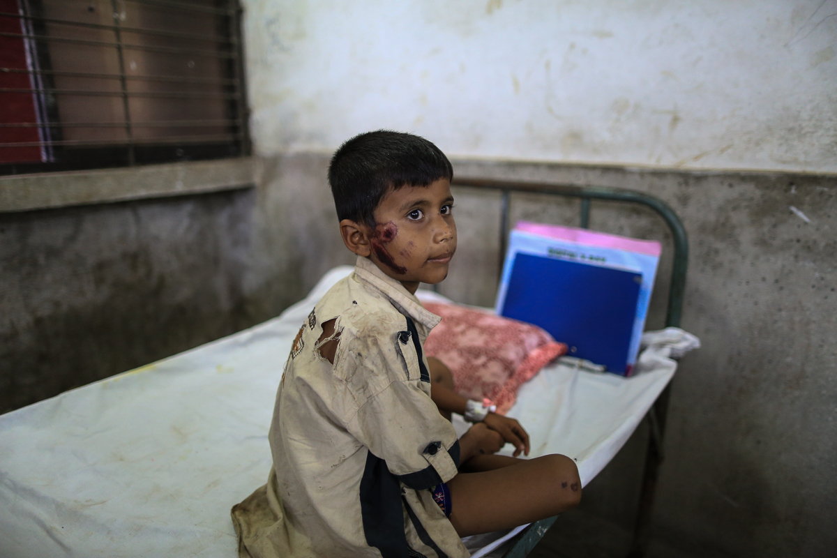 An eight-year-old boy was treated at the Sadar Hospital in Bangladesh for wounds sustained when the Myanmar army burned down his home.