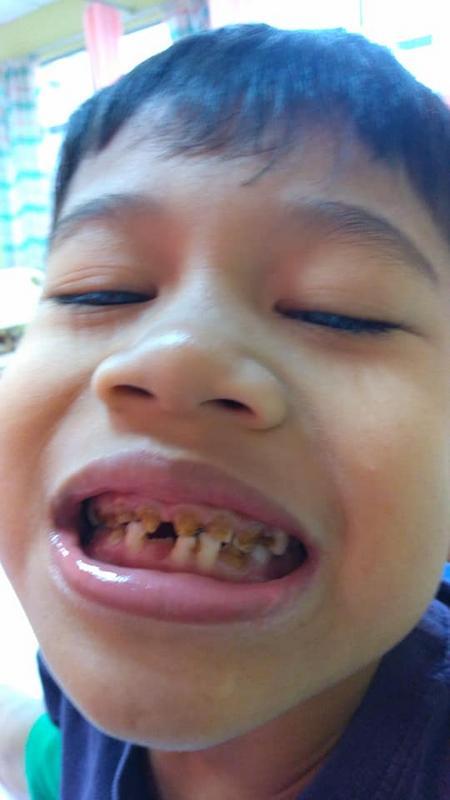 Padah Kurang Kalsium Malas Gosok Gigi Kanak Kanak 6 Tahun Ini Hilang Semua Gigi