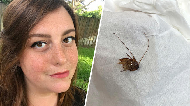 Cockroach stuck in women's ear for nine days