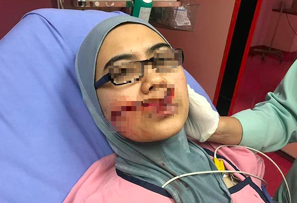 Woman Left With 5cm-Long Scar On Her Face After Being Attacked By