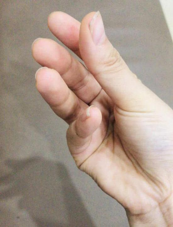 The 21-year-old's cramped hand.