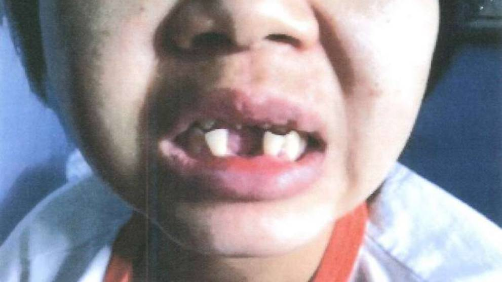 The 32-year-old maid had her teeth knocked out with a hammer.