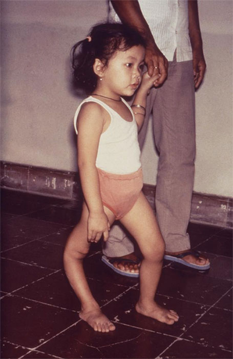 A child with a permanent deformity of her right leg caused by poliovirus infection.