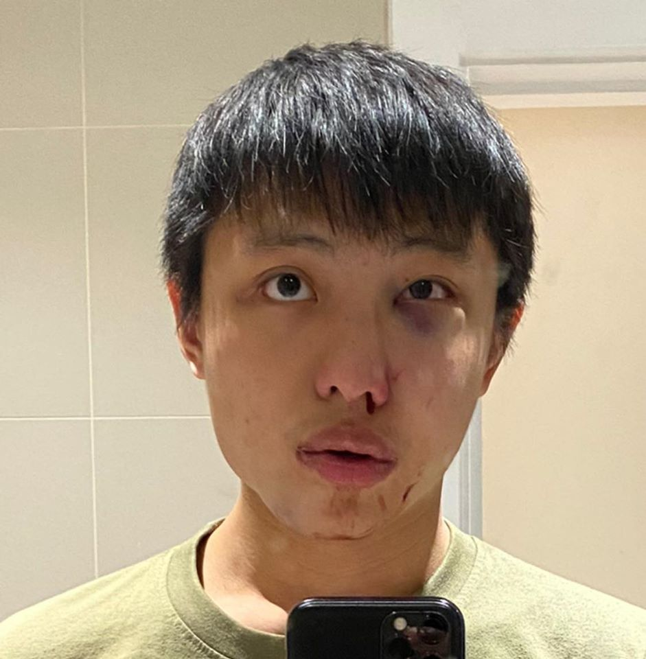 Mok's face on the day of the assault, he clarified that this picture is flipped and he has a bruise on his left eye.